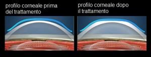 ortocheratologia - lenti a contatto - bergamo